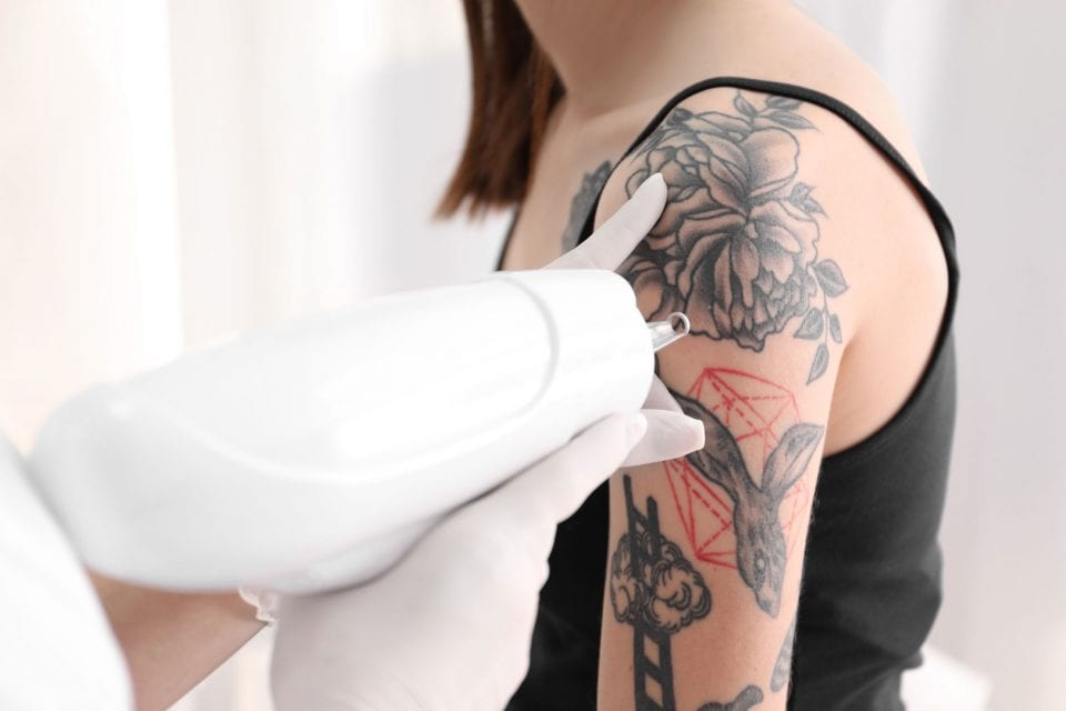 Tattoo Removal Plastic & Facial Plastic Surgery