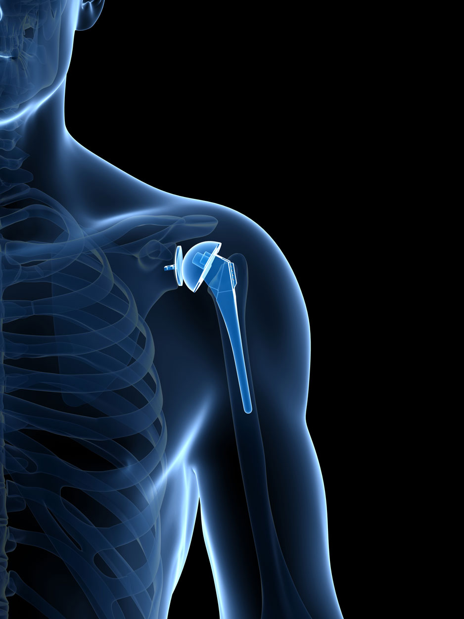 Total Shoulder Replacement Orthopaedic Surgery