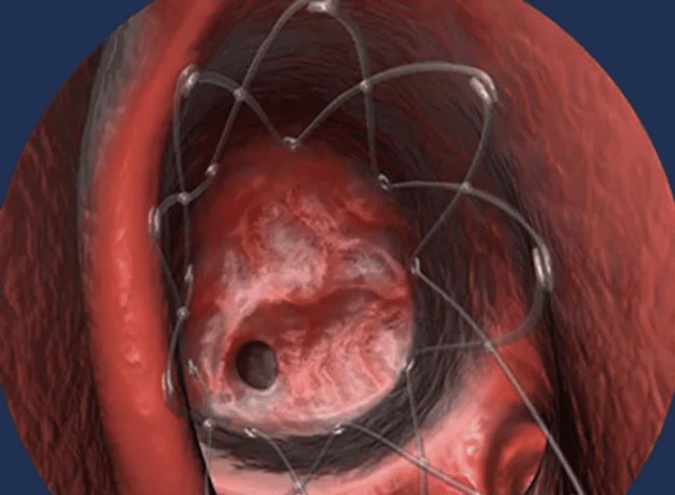 Propel Opens Ear, Nose, Throat, Head & Neck (ENT)