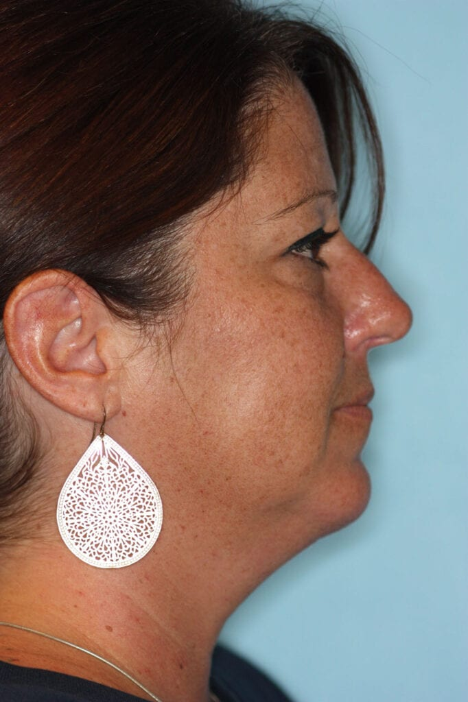 Chin Augmentation - After