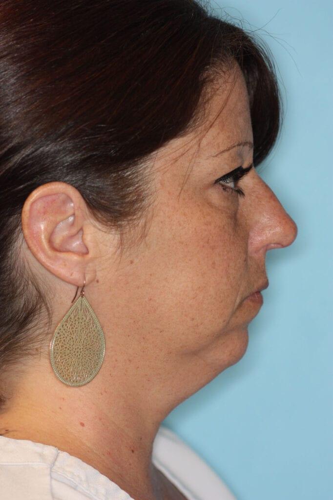 Chin Augmentation - Before