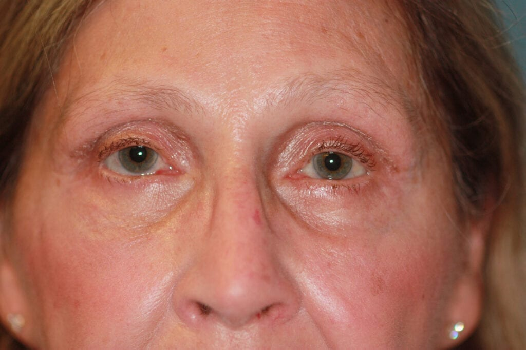 Eyelid Surgery - After