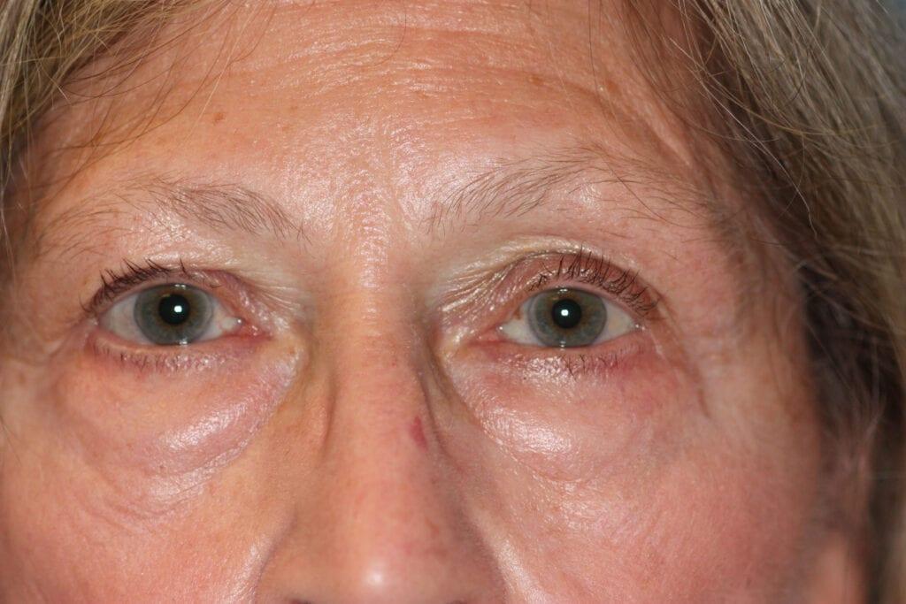 Eyelid Surgery - Before