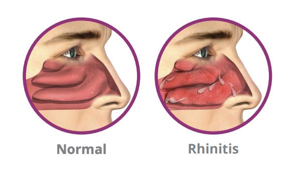 Rhinitis - RhinAer®